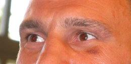 Kliczce też można podbić oko
