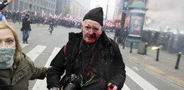 Marsz Niepodległości. Policja zajmie się sprawą postrzelonego fotoreportera