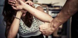 Skatował kobietę. Ofiara ma połamane kości twarzy