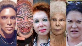 Ofiary operacji plastycznych. Przerażające zdjęcia