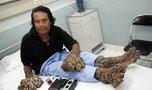 Smutna historia Człowieka Drzewo. Umierał samotnie w szpitalu bez rodziny