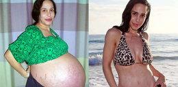 Urodziła ośmioraczki i odzyskała figurę!