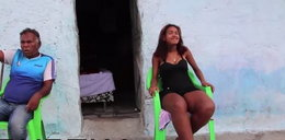 22-latka ma gigantyczne stopy, bo ukąsił ją owad! FILM