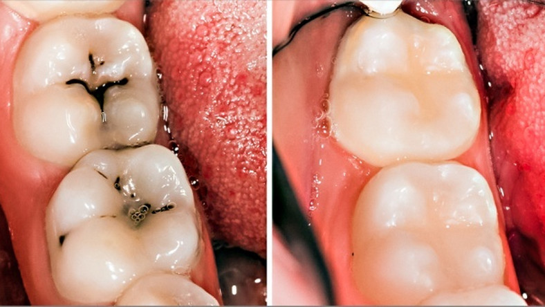 3 home remedies for tooth decay and cavities - Pulse Nigeria