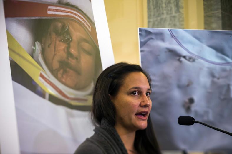 Głośnym echem odbiła się historia Stephanie Erdman, która w listopadzie 2014 roku zeznawała przed komisją senatu USA. Kobieta przestała widzieć na prawe oko - oślepił ją odłamek z wybuchającej poduszki firmy Takata