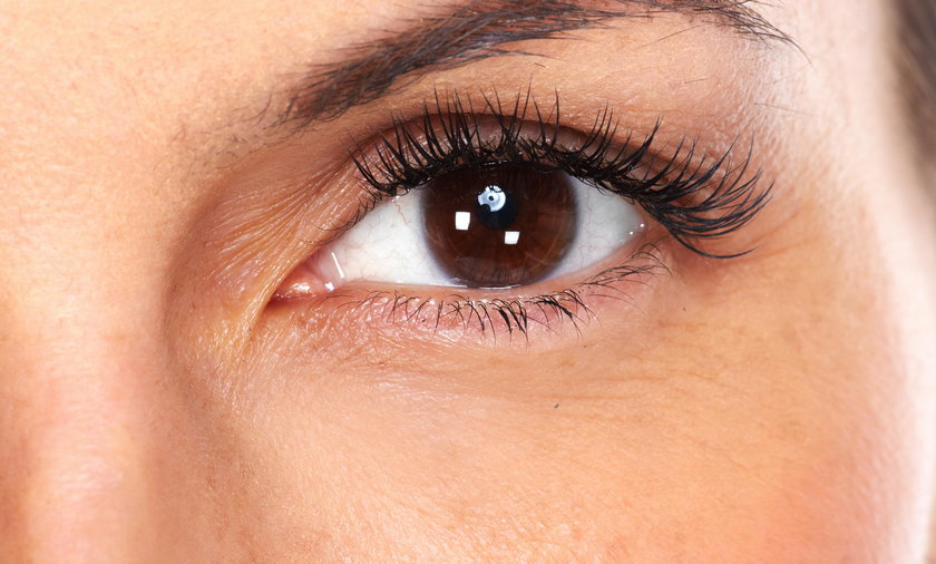 Masz brązowe oczy? Możesz cierpieć na tę chorobę!