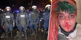 """""""Obficie krwawię i pluję krwią"""". Protestująca na Strajku Kobiet oskarża policjanta o straszne rzeczy"""