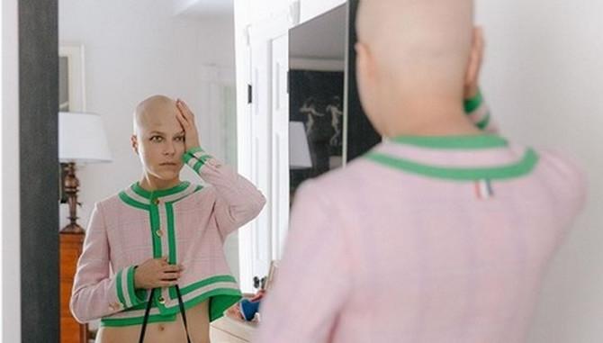 Selma Bler šokantnom fotografijom obeležila put ka oporavku