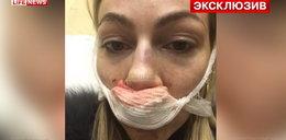 Szef brutalnie pobił Julię na oczach personelu