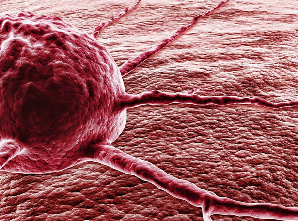 rak nowotwór komórka rakowa