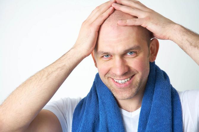 50 odsto muške populacije ima problema s kosom