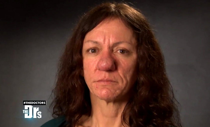 46-letnia Pamela zgłosiła się do programu The Docors, bo jej nos nie przestaje rosnąć