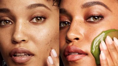 Skincare Secrets: How to free your skin's pores