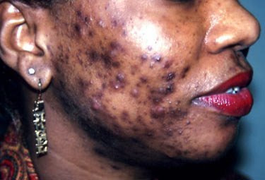 Bad case of adult acne