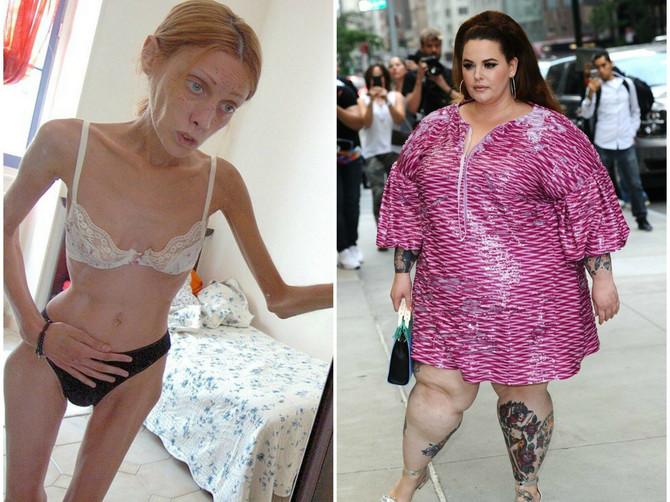 Anoreksija je jeziva, ali novi trend je OPASAN PO ŽIVOT. Da li je OK danas biti debeo?