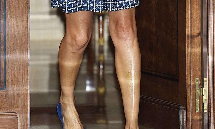 Kto ma takie nogi?