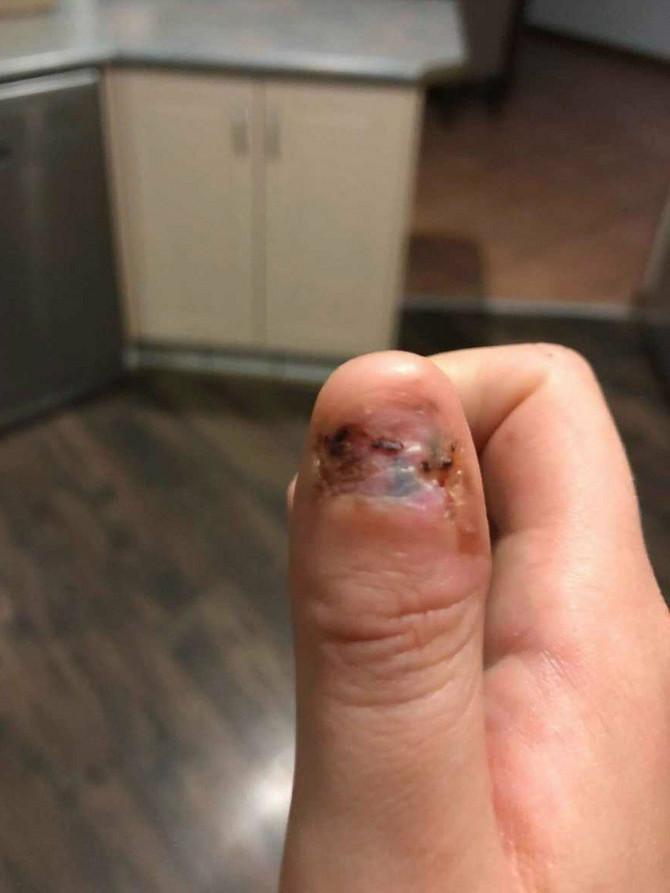Osim palca, uklonjena su joj i dva limfna čvora
