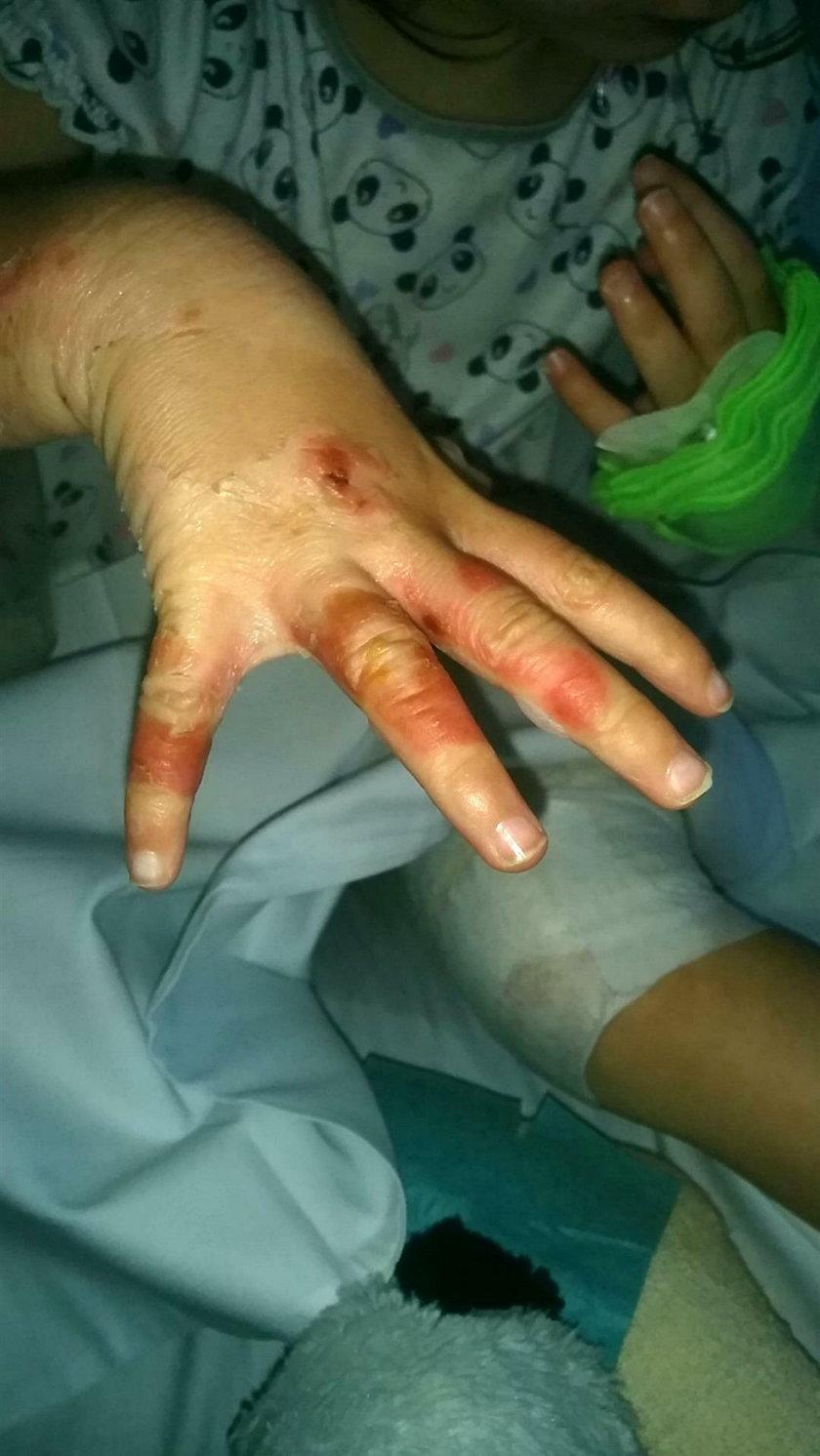 3-latka dotkliwie poparzona. Przez termostat