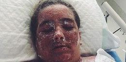 Wykąpała się w wybielaczu! Tak jej kazał lekarz?