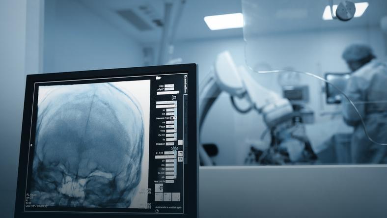 Neuroprotezy nadzieją dla sparaliżowanych