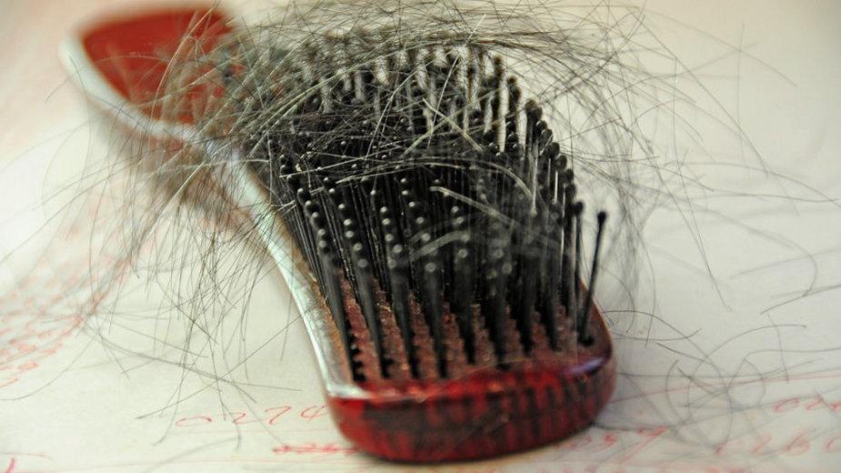 Naukowcy ustalili, dlaczego stres powoduje utratę włosów