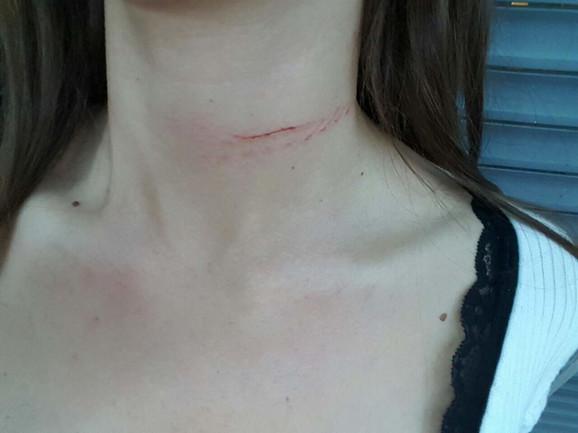Sorajina posekotina na vratu