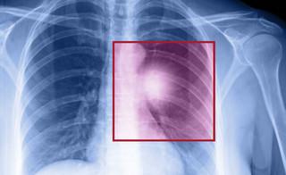 Coraz więcej przypadków raka płuc u niepalących. Ekspert: Powodem zanieczyszczone powietrze