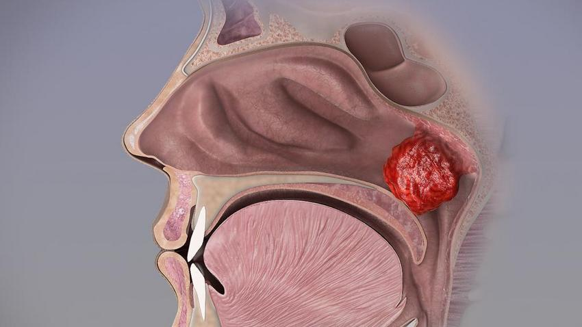 a rhinitis fertőző tünetei papillomaviridae kórtörténet