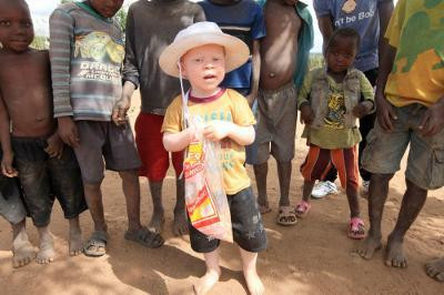 Attacks on albinos in Malawi surge, body parts sold for witchcraft