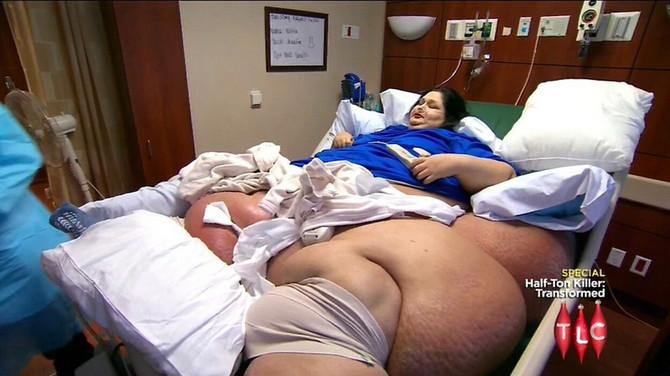 Spremna za operaciju