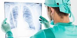 39-latka otrzymała płuca nałogowej palaczki. Skończyło się tragicznie