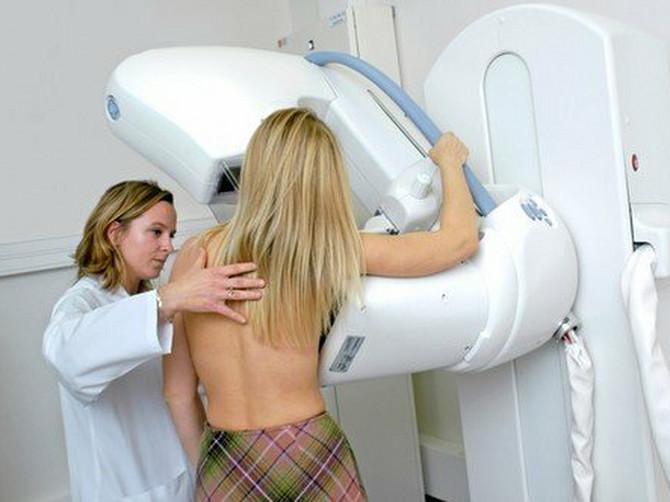 Rak grlića materice svakog dana ubije dve žene u Srbiji