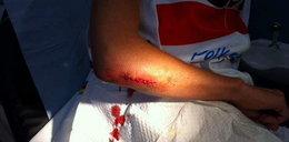 Włoszczowska miała wypadek na trasie. Foto