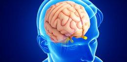 Chcesz mieć zdrowy mózg? Jedz te produkty