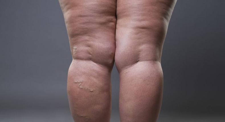 Habits that cause cellulite(inquisitr)