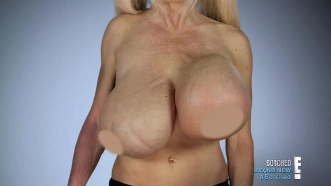 Porno zvezda Elizabet Star ima velike probleme sa silikonima u grudima