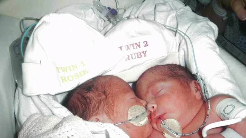 Dziewczynki Rosie i Ruby Formosa urodziły się 27 lipca 2012 roku. O tym, że są bliźniaczkami syjamskimi ich mama, Angela, dowiedziała się już w ciąży