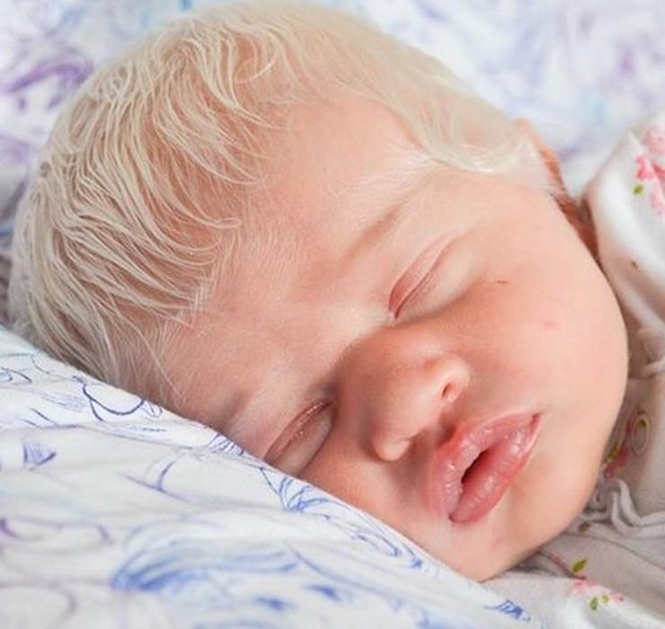 albino beba