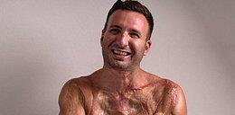 Poraziło go 14 tys. woltów. Miał stopioną skórę i zwęglone mięśnie. To cud, że żyje