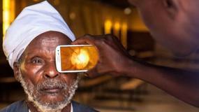 Smartfony pomogą lekarzom zdiagnozować chorobę