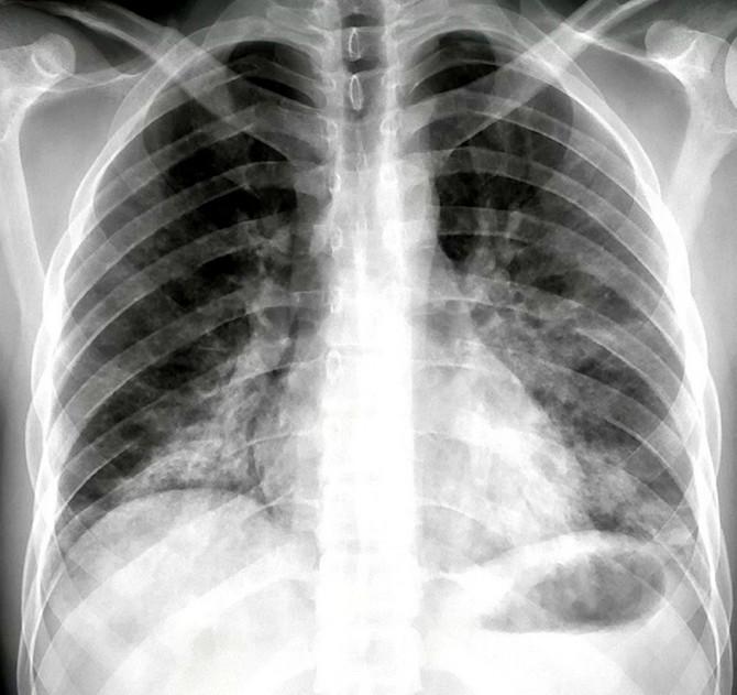Pneumonija koju izaziva kovid-19 javlja se u najtežim slučajevima