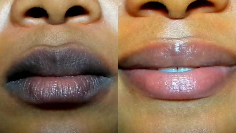 Here's a simple method to lighten dark lips naturally - Pulse Live Kenya