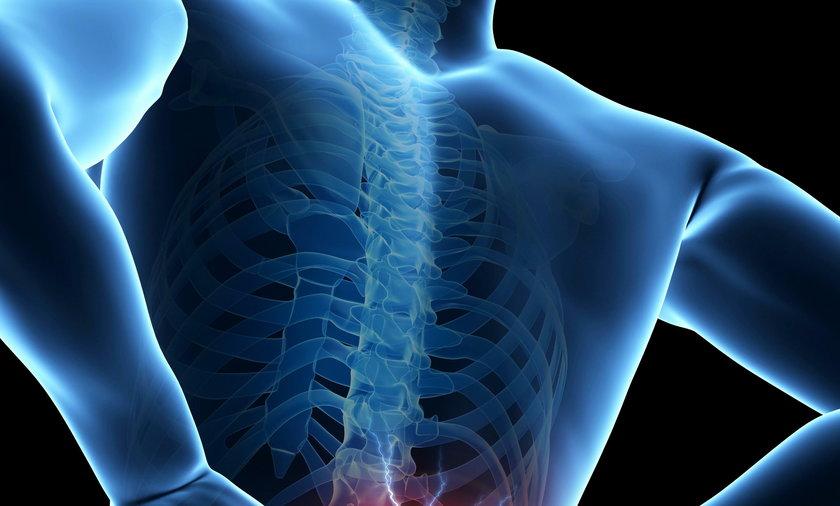 Dokucza zdecydowanej większości społeczeństwa. Nazywamy jest różnie: ból krzyża, okolicy lędźwiowo-krzyżowej albo dolnego odcinka kręgosłupa. Niezależnie od nazwy, by nie wpaść w pułapkę łatwej, prostej i błędnej diagnozy, trzeba określić jego przyczynę