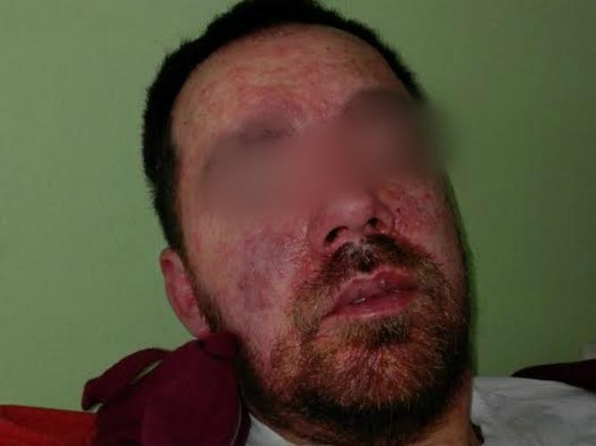 Ovaj Beograđanin je u 38. godini dobio ovčije boginje: Prošao sam pakao!