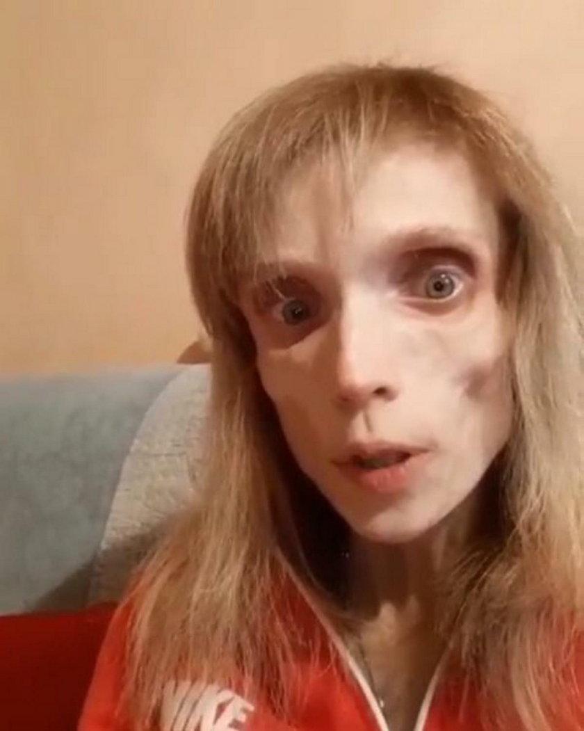 Kristina Karyagina walczy z anoreksją. Ma 26 lat i waży 17 kilogramów