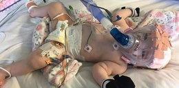 Niemowlę przeżyło operację na otwartym sercu. Teraz walczy z koronawirusem
