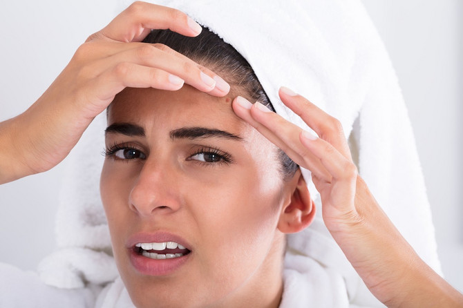 Kako da pomognete koži u izolaciji
