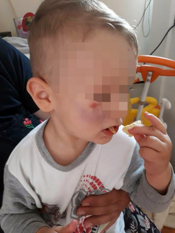 Dečaku su modrice mazali margarinom, kaže ogorčena majka