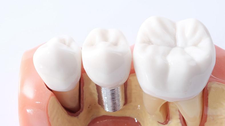 Implanty i korona