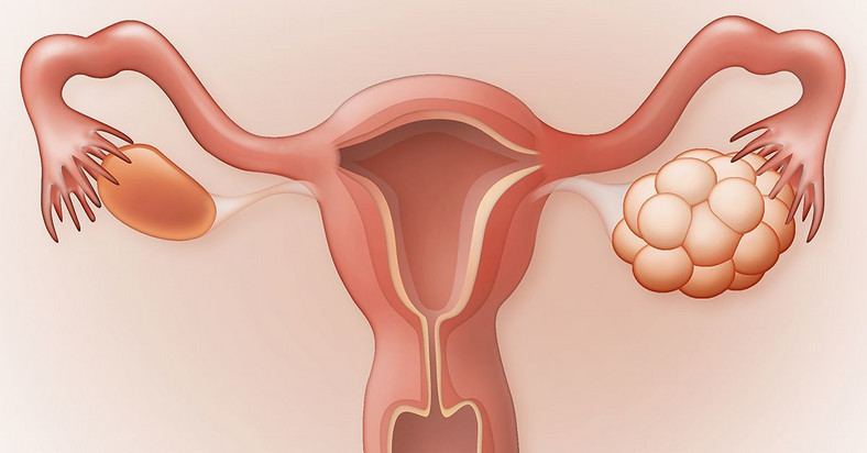polycystic ovarian syndrome(Bayer Research Magazine)